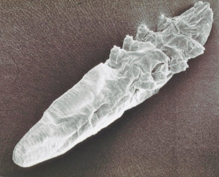A scanning electron microscope images of a follicle mite.